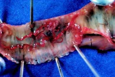 Gapeworm symptoms in chickens